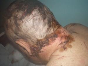 На Закарпатье мужик изрубил себя топором