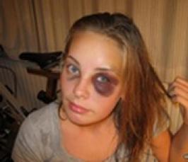 В Запорожье избита женщина