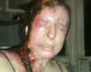 На Кировоградщине ревнивец облил жену кислотой